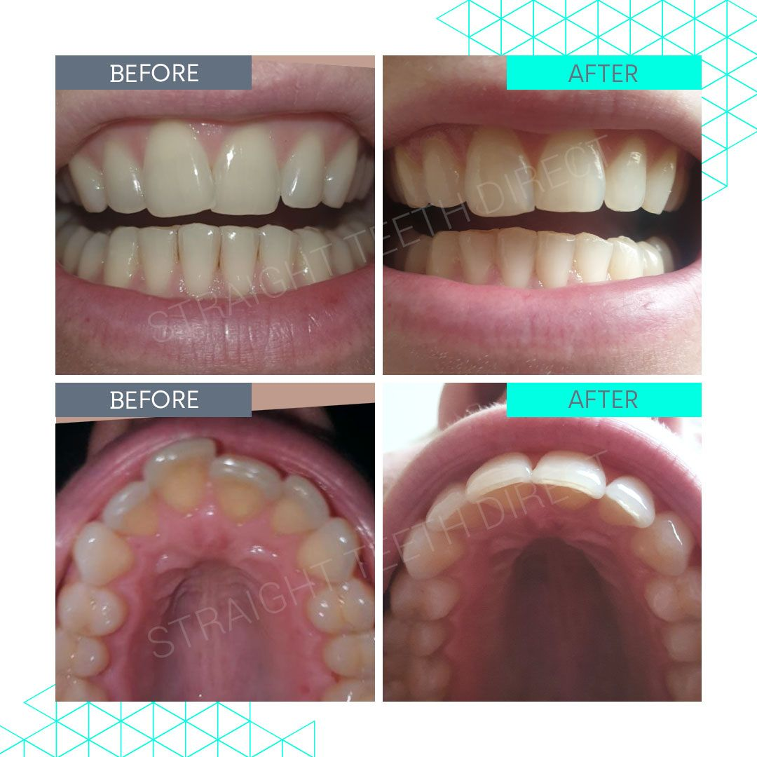 Straight Teeth Direct Review by Lea