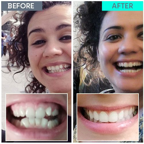Straight Teeth Direct Review by Noelia Carracedo