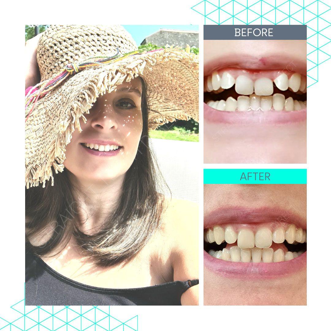 Straight Teeth Direct Review by Veneta