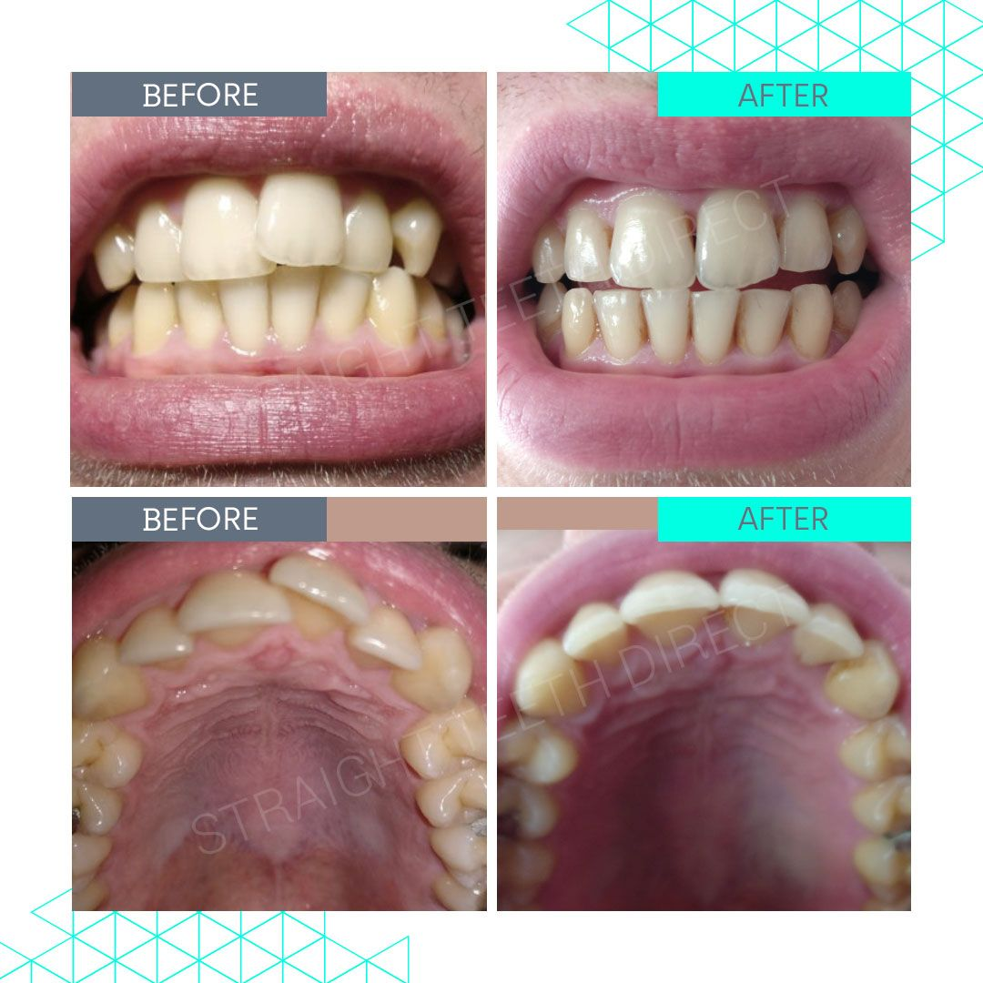 Straight Teeth Direct Review by Killian
