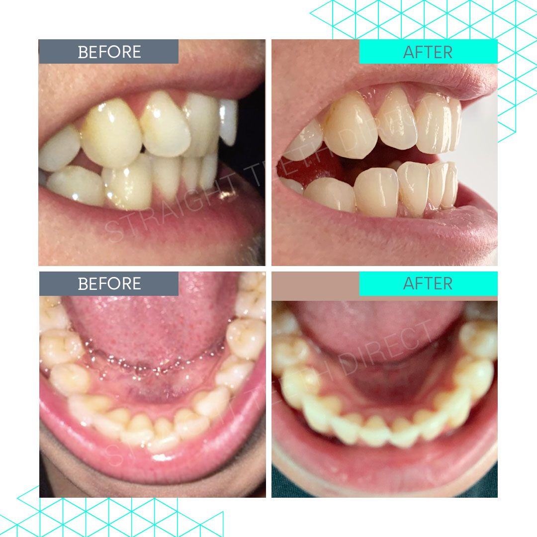 Straight Teeth Direct Review by Nancy