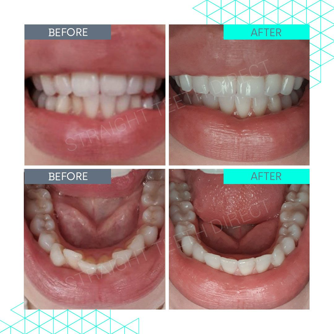 Straight Teeth Direct Review by Eve