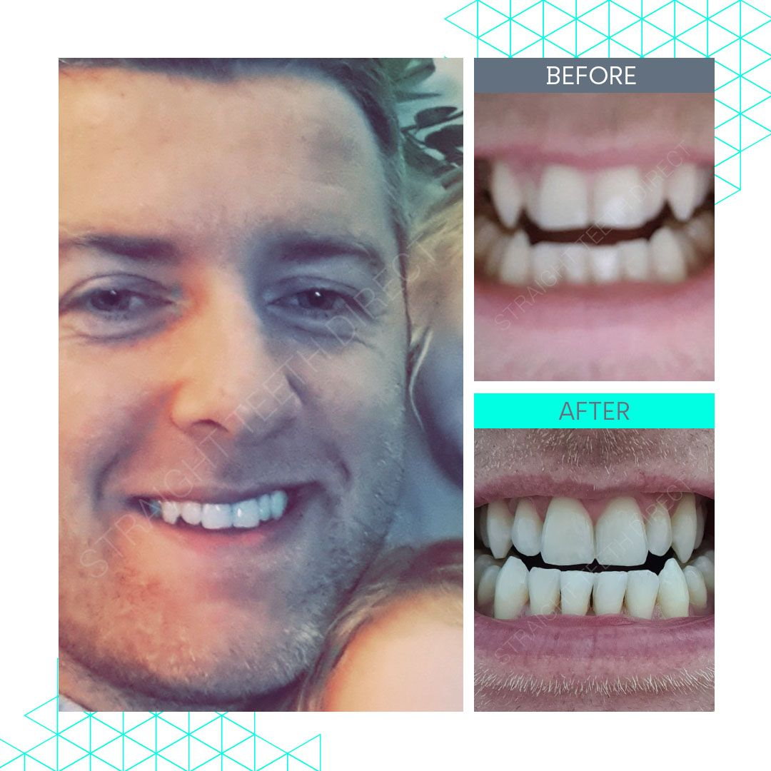 Straight Teeth Direct Review by Eanan