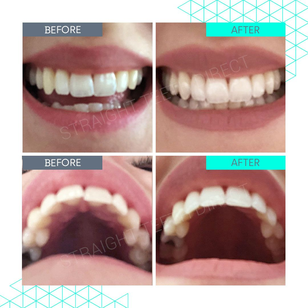 Straight Teeth Direct Review by Zoe