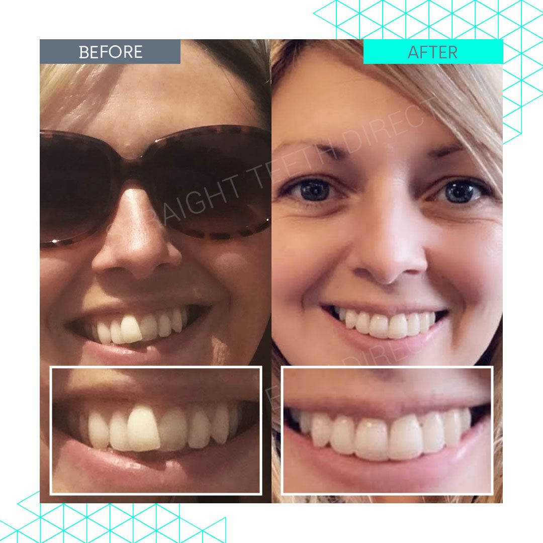 Straight Teeth Direct Review by Sarah
