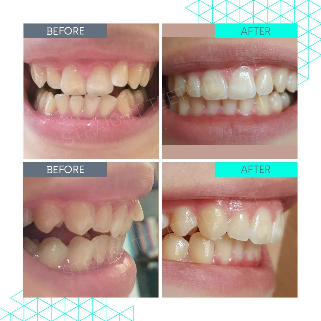 Straight Teeth Direct Review by Florentine