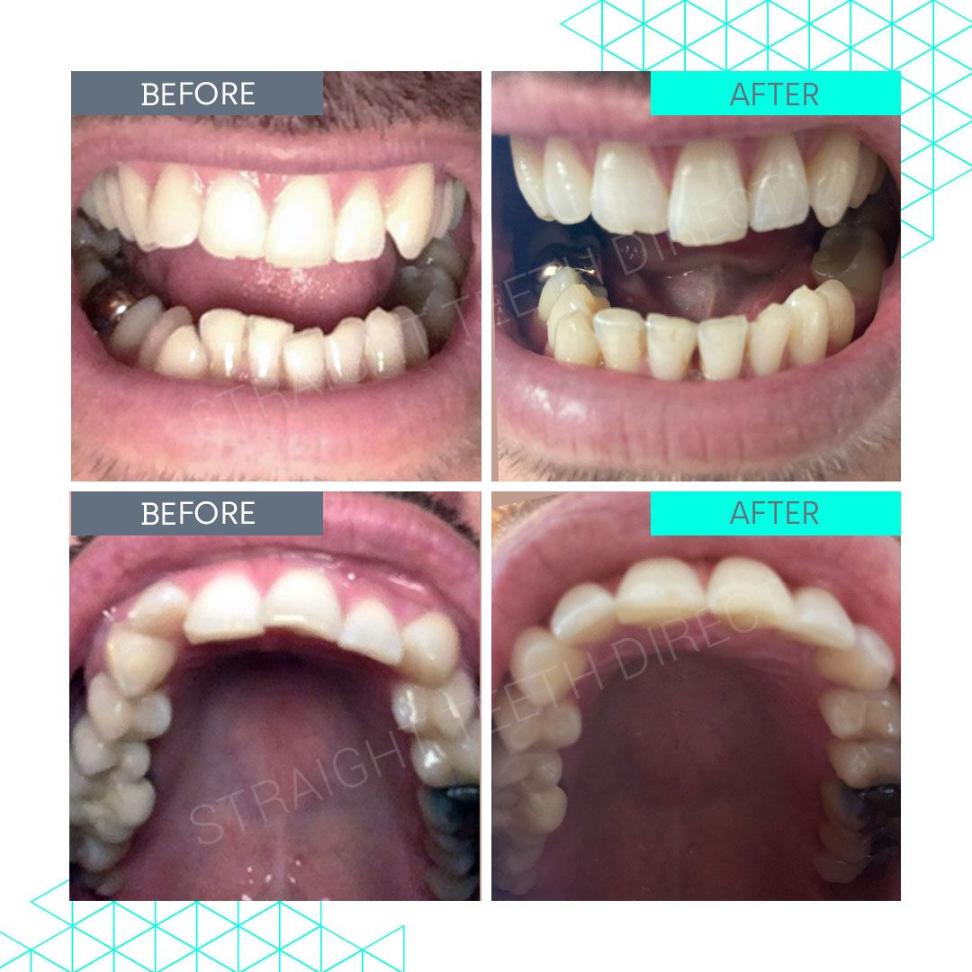 Straight Teeth Direct Review by Mike