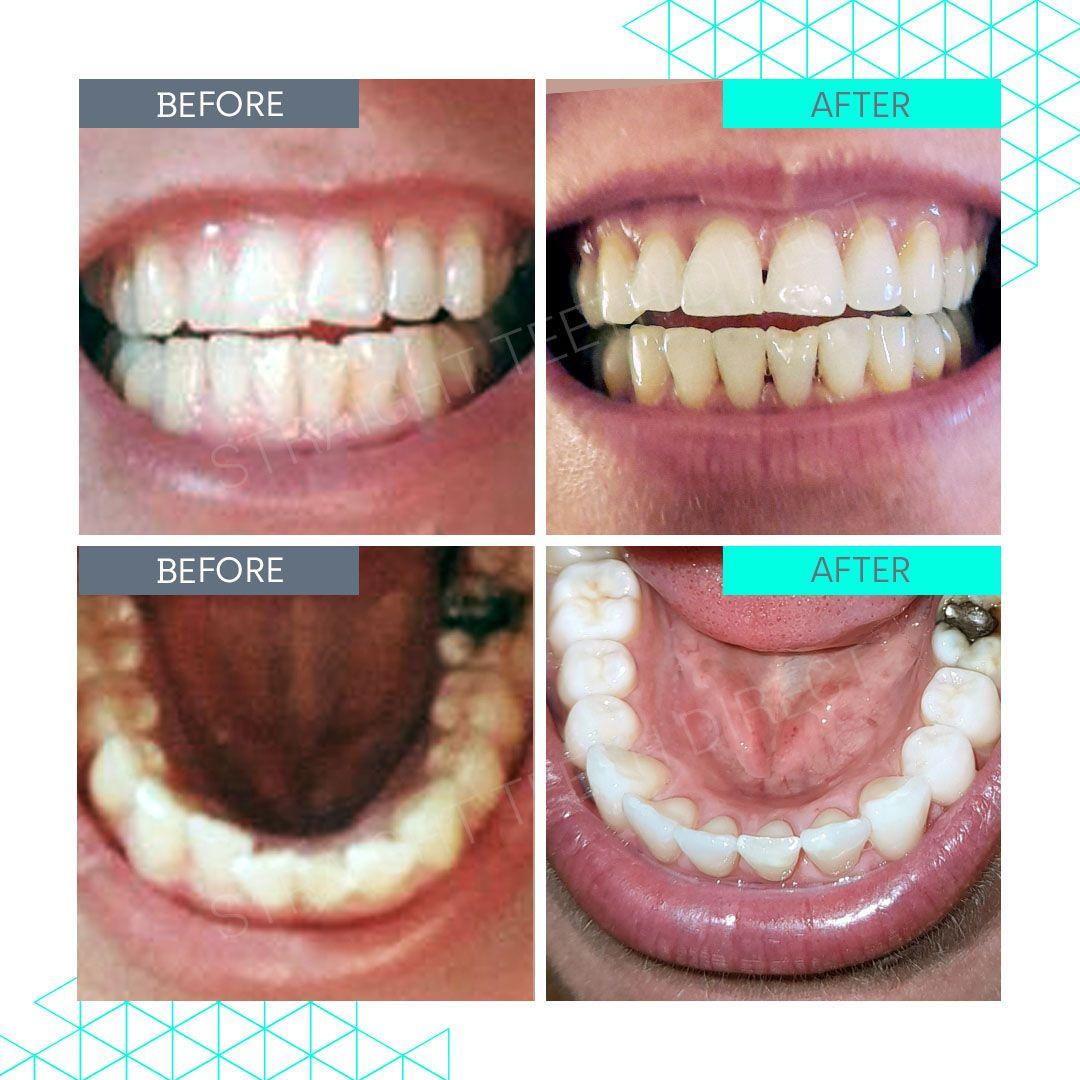 Straight Teeth Direct Review by Natasha