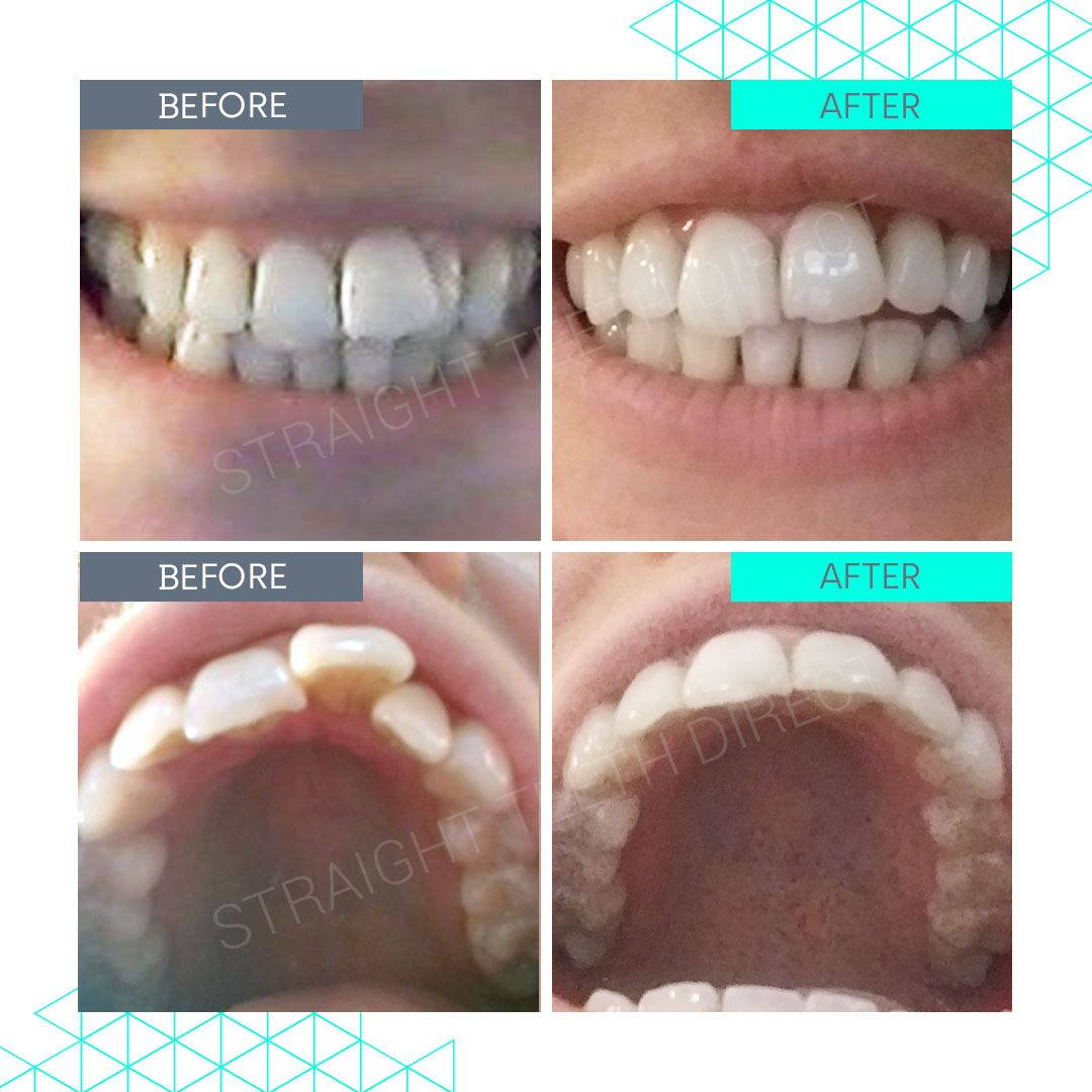 Straight Teeth Direct Review by Saskia