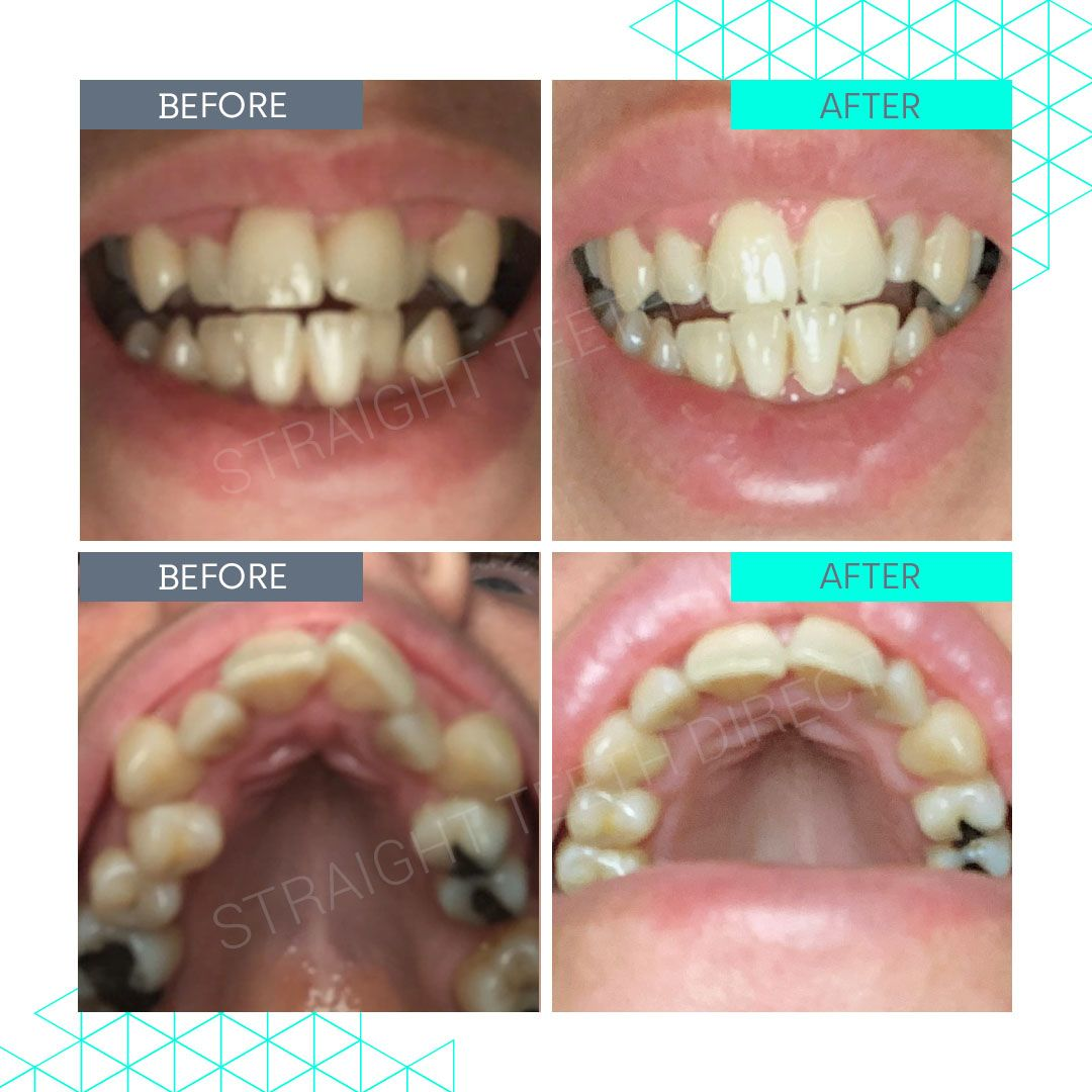 Straight Teeth Direct Review by Winnie