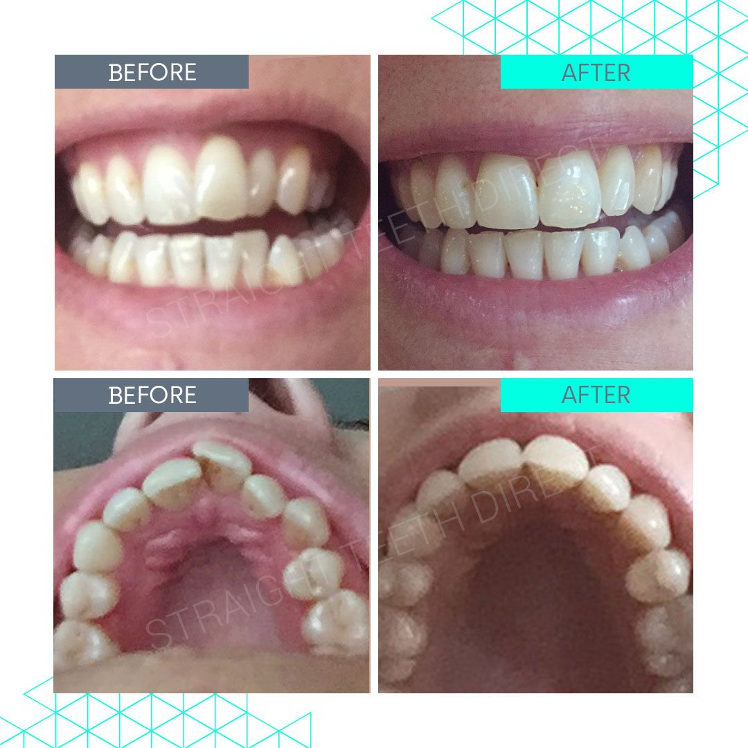 Straight Teeth Direct Review by Amanda