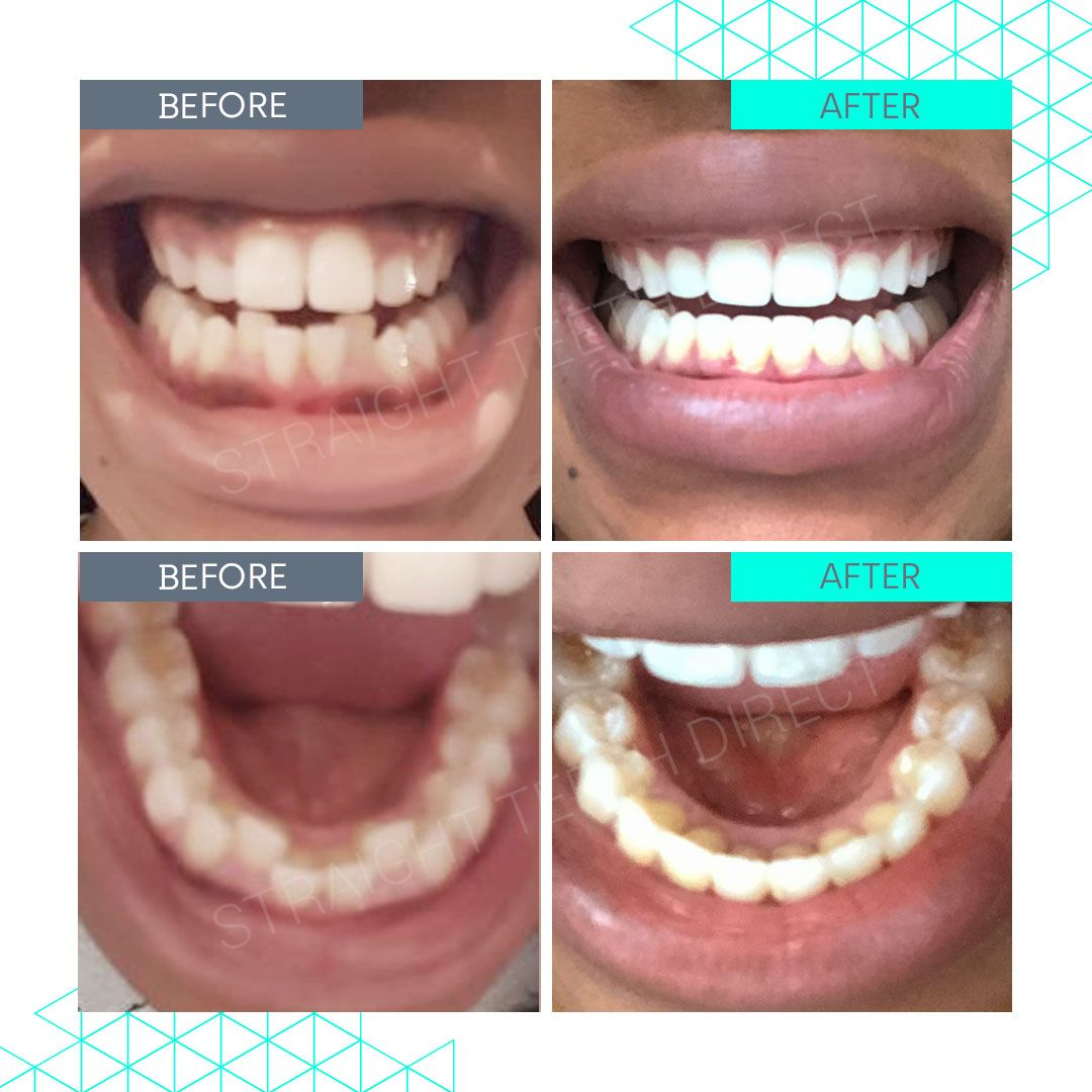 Straight Teeth Direct Review by Jess