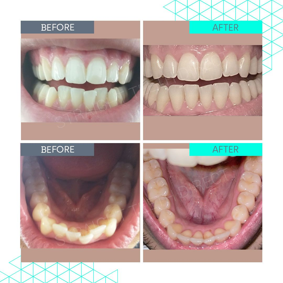 Straight Teeth Direct Review by Nassim