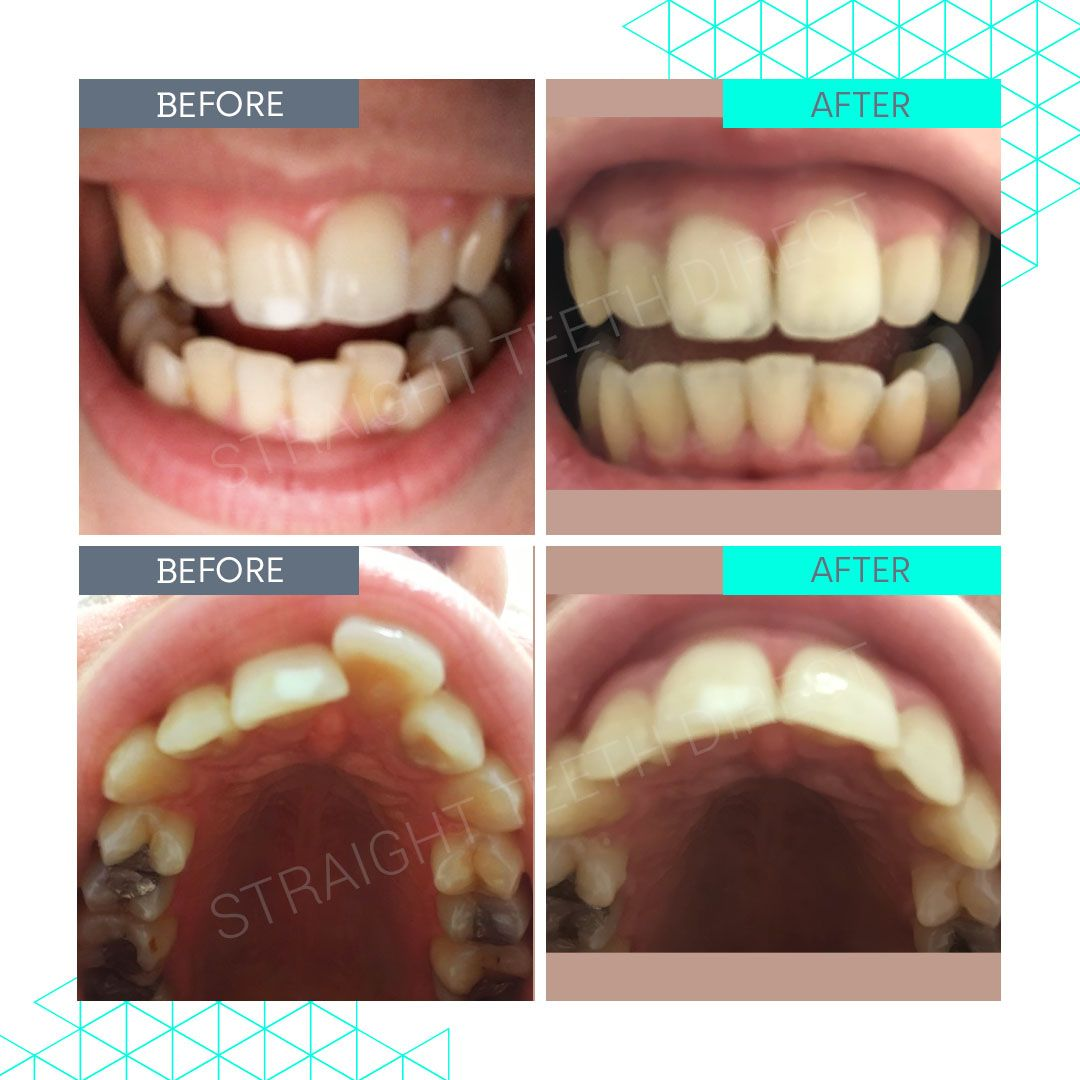 Straight Teeth Direct Review by Aimee