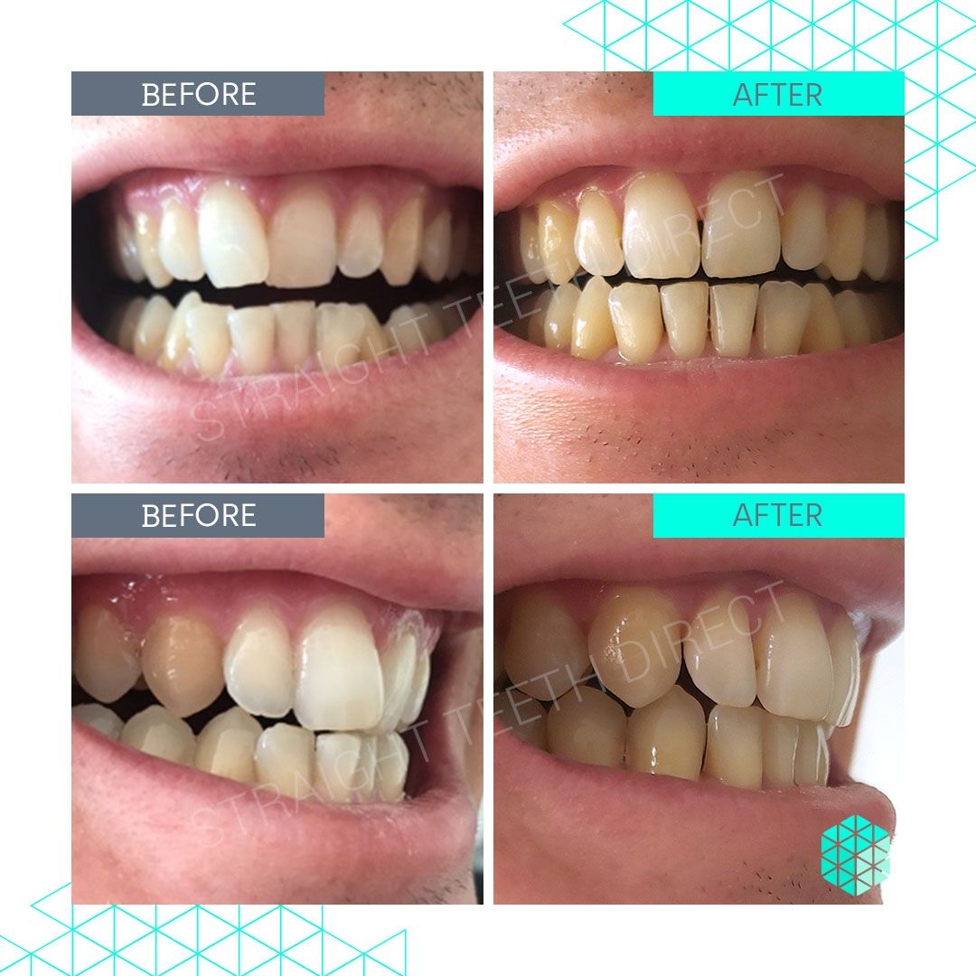 Straight Teeth Direct Review by Daniele