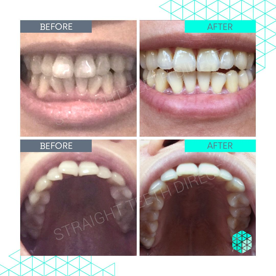 Straight Teeth Direct Review by Eileen