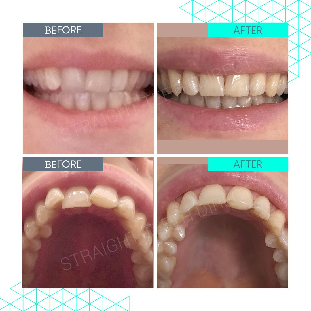 Straight Teeth Direct Review by Emma