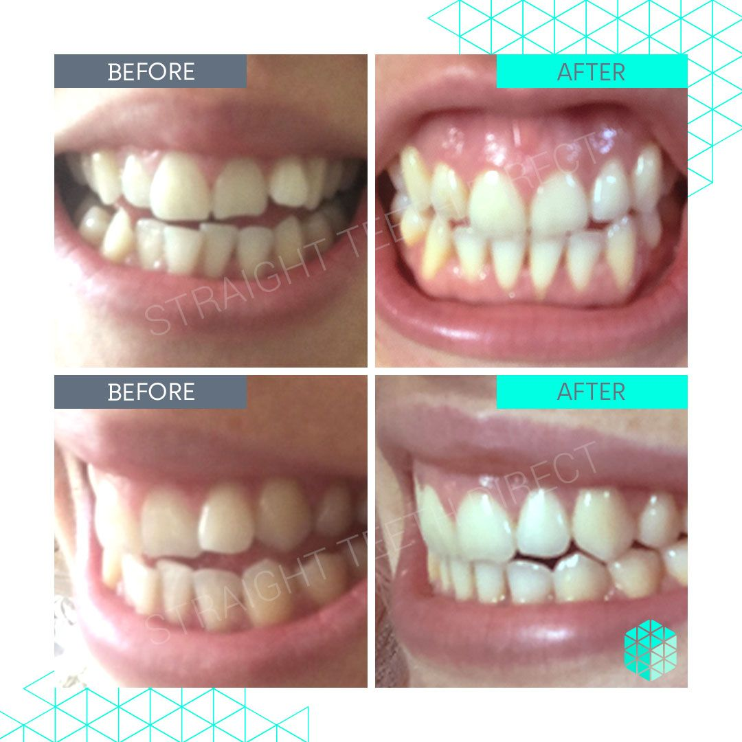 Straight Teeth Direct Review by Gabriella