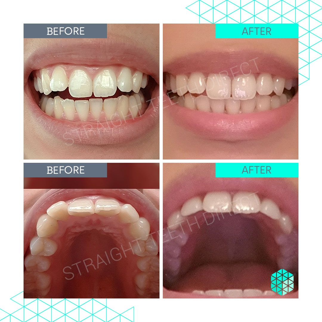 Straight Teeth Direct Review by Geraldine