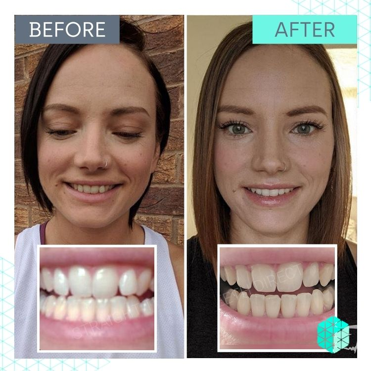 Straight Teeth Direct Review by Kate