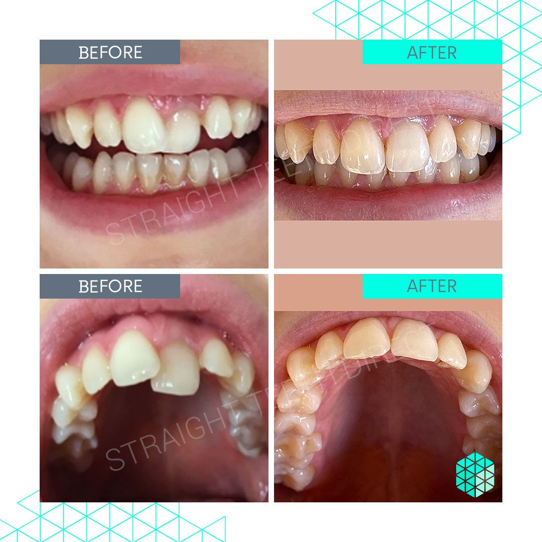 Straight Teeth Direct Review by Kathrin
