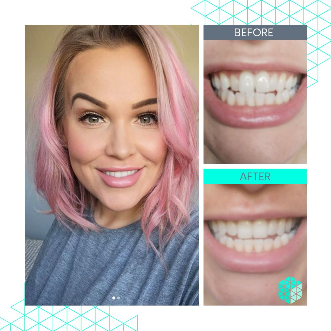 Straight Teeth Direct Review by Laura