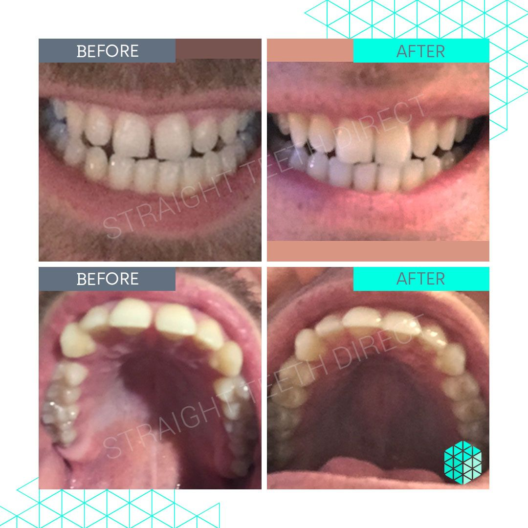 Straight Teeth Direct Review by Luke P
