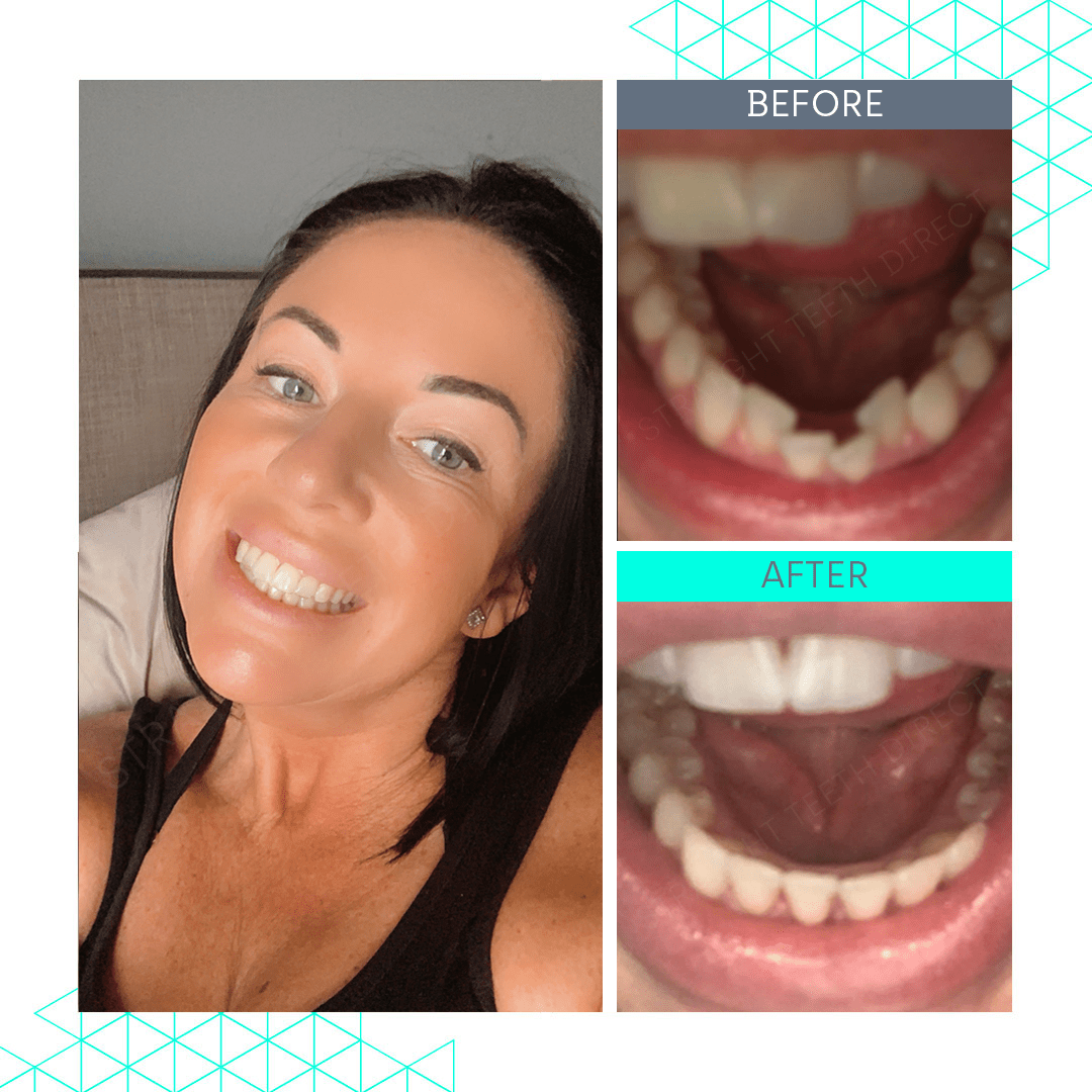 Straight Teeth Direct Review by Michelle