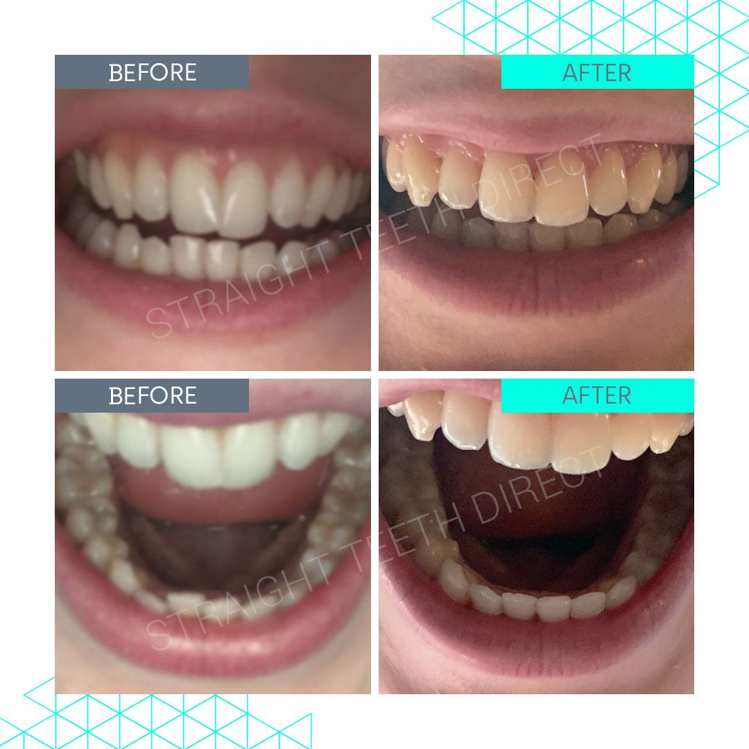 Straight Teeth Direct Review by Olivia