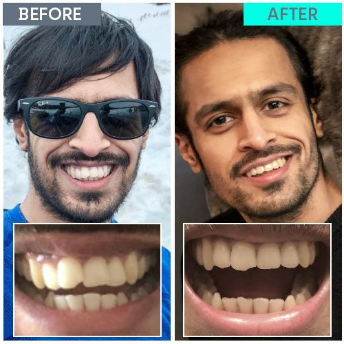 Straight Teeth Direct Review by Prash