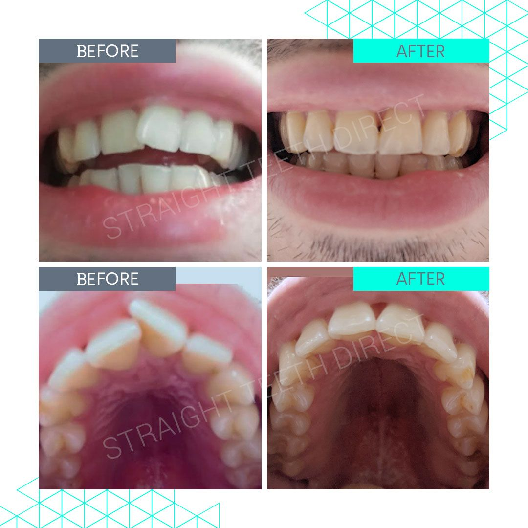 Straight Teeth Direct Review by