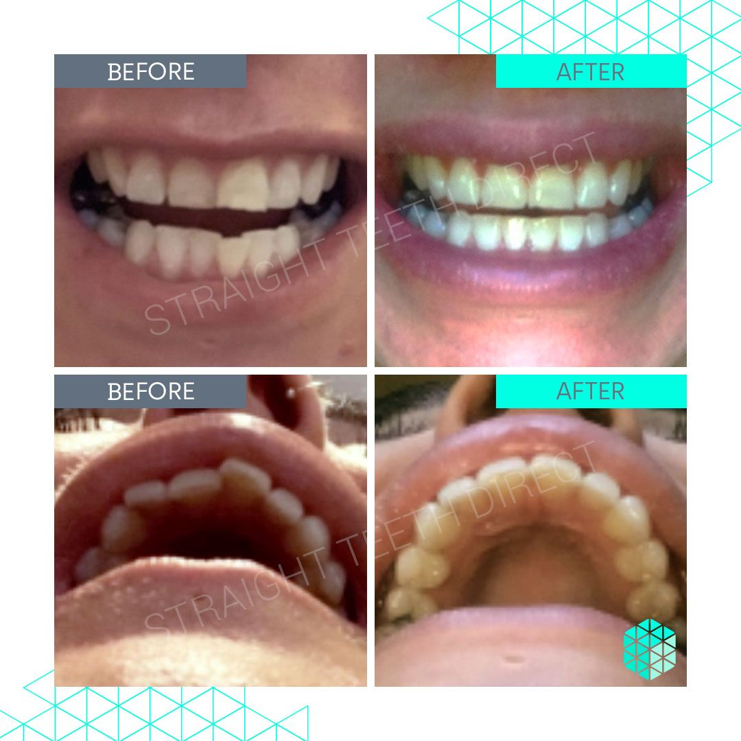 Straight Teeth Direct Review by Zahra