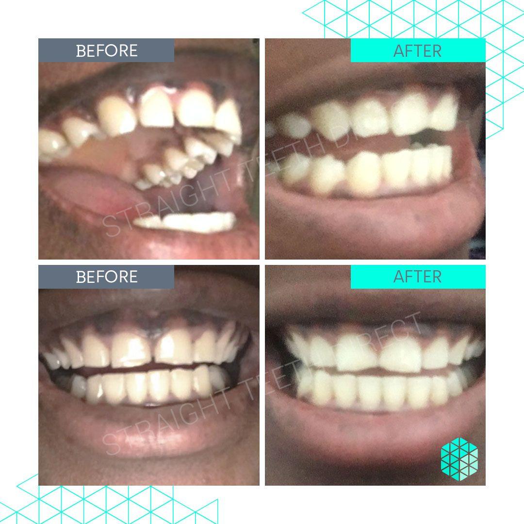 Straight Teeth Direct Review by Adama Manga