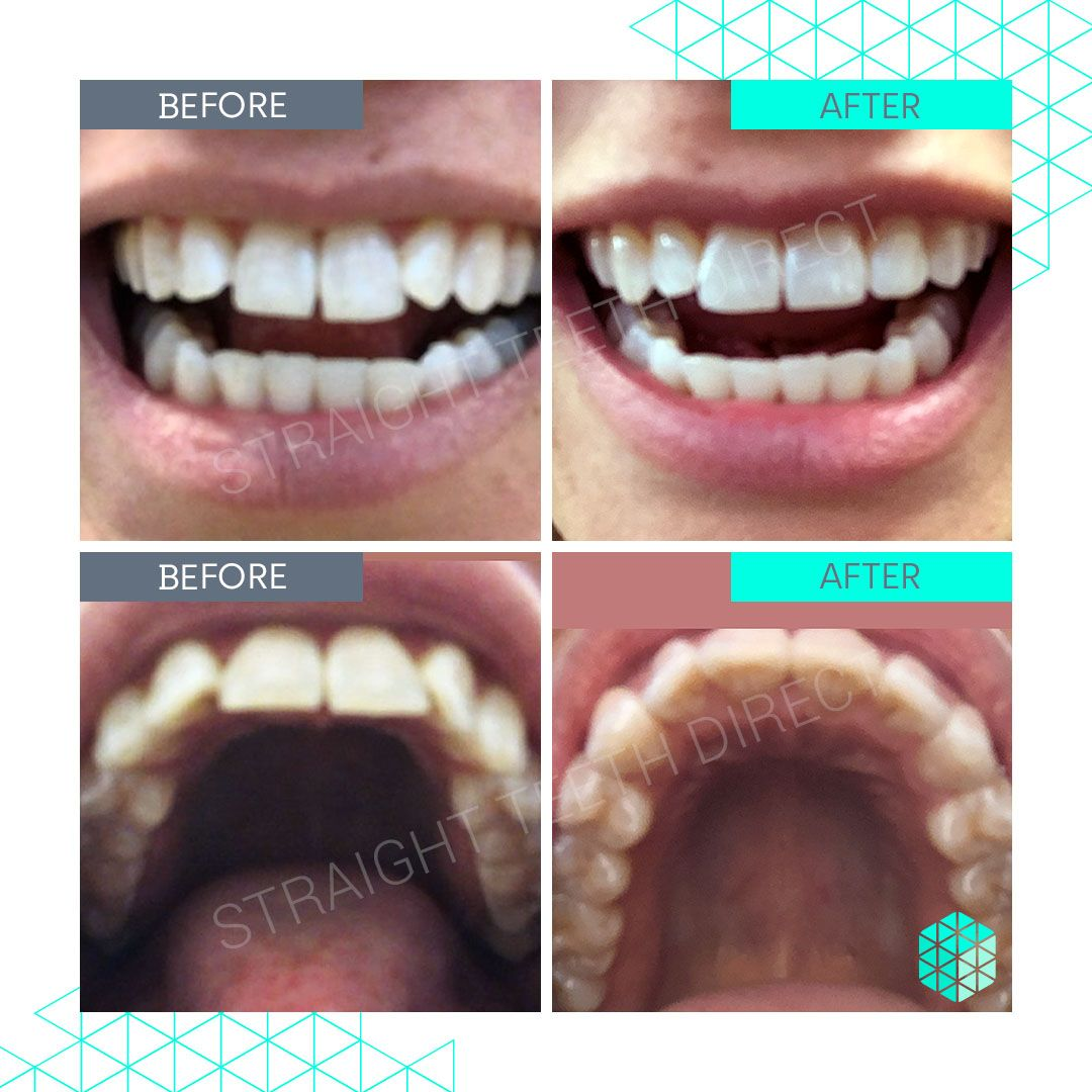 Straight Teeth Direct Review by Alice