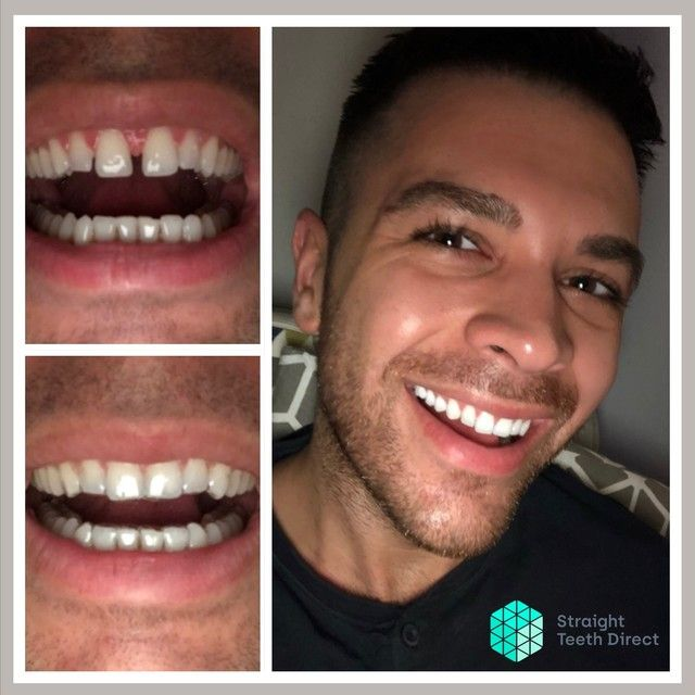 Straight Teeth Direct Review by Anthony
