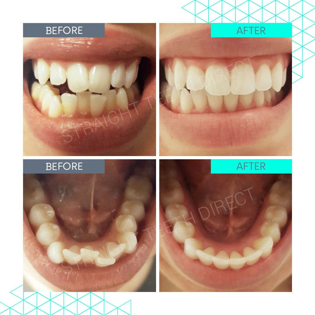 Straight Teeth Direct Review by Catherine Kiev