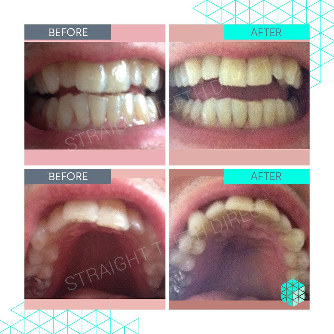 Straight Teeth Direct Review by David D