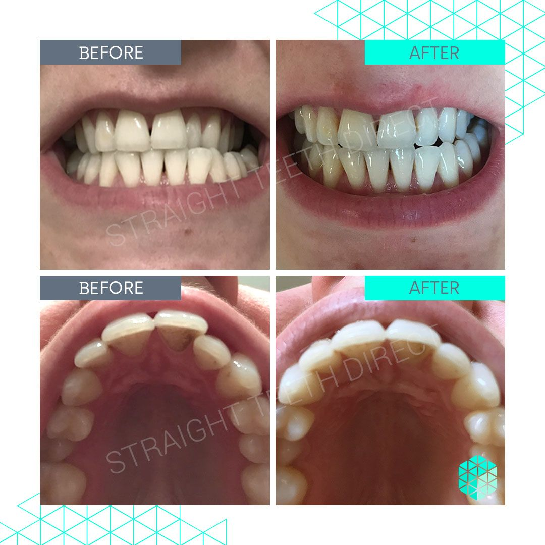 Straight Teeth Direct Review by Emily