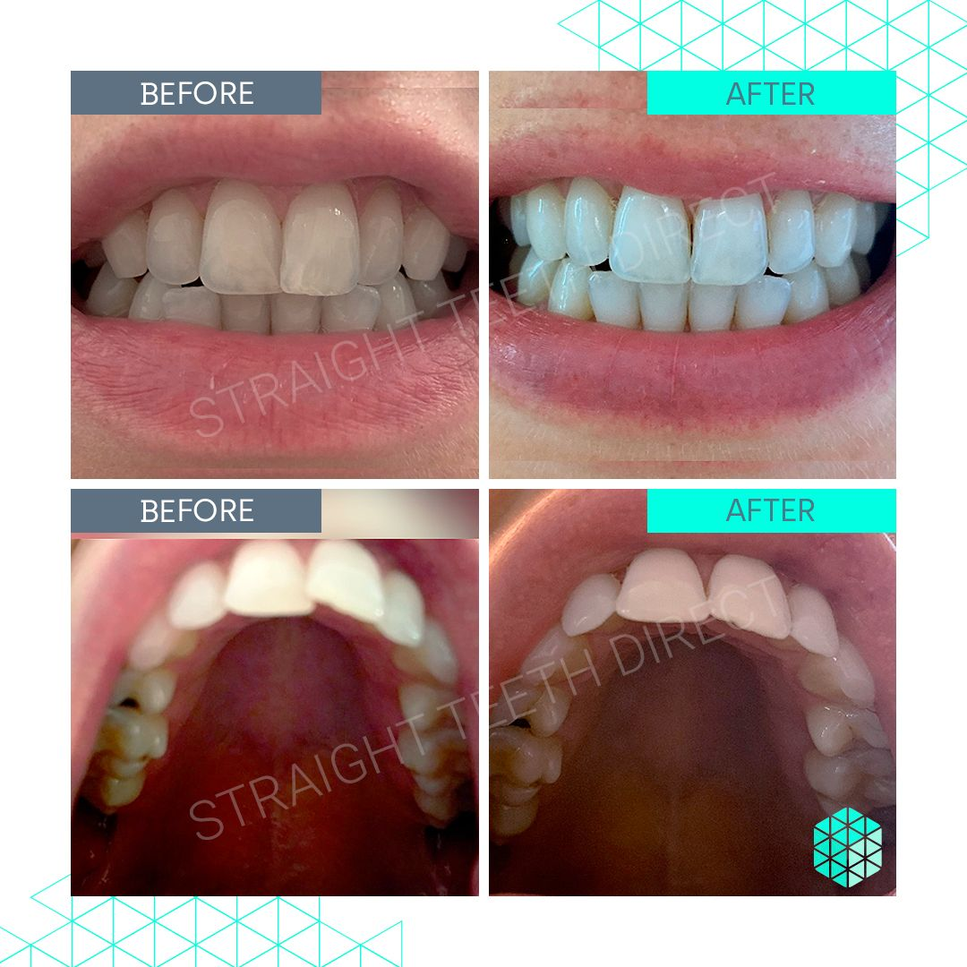 Straight Teeth Direct Review by Emma P