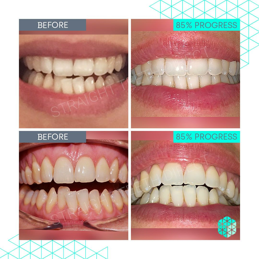 Straight Teeth Direct Review by Esther
