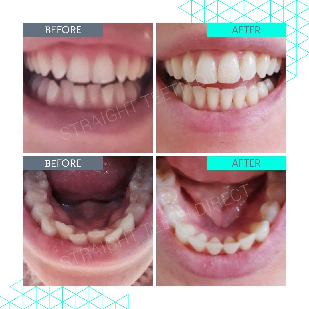 Straight Teeth Direct Review by Gemma