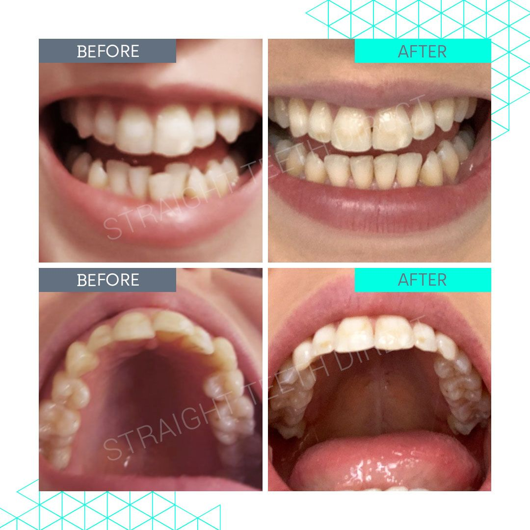 Straight Teeth Direct Review by Harriet