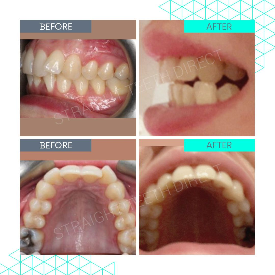 Straight Teeth Direct Review by Hollie