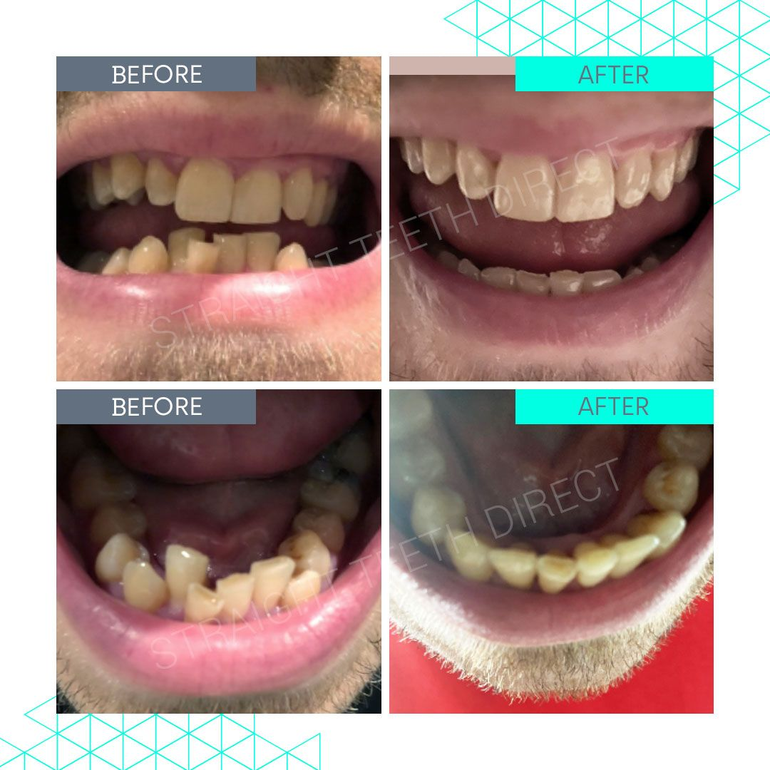 Straight Teeth Direct Review by James W