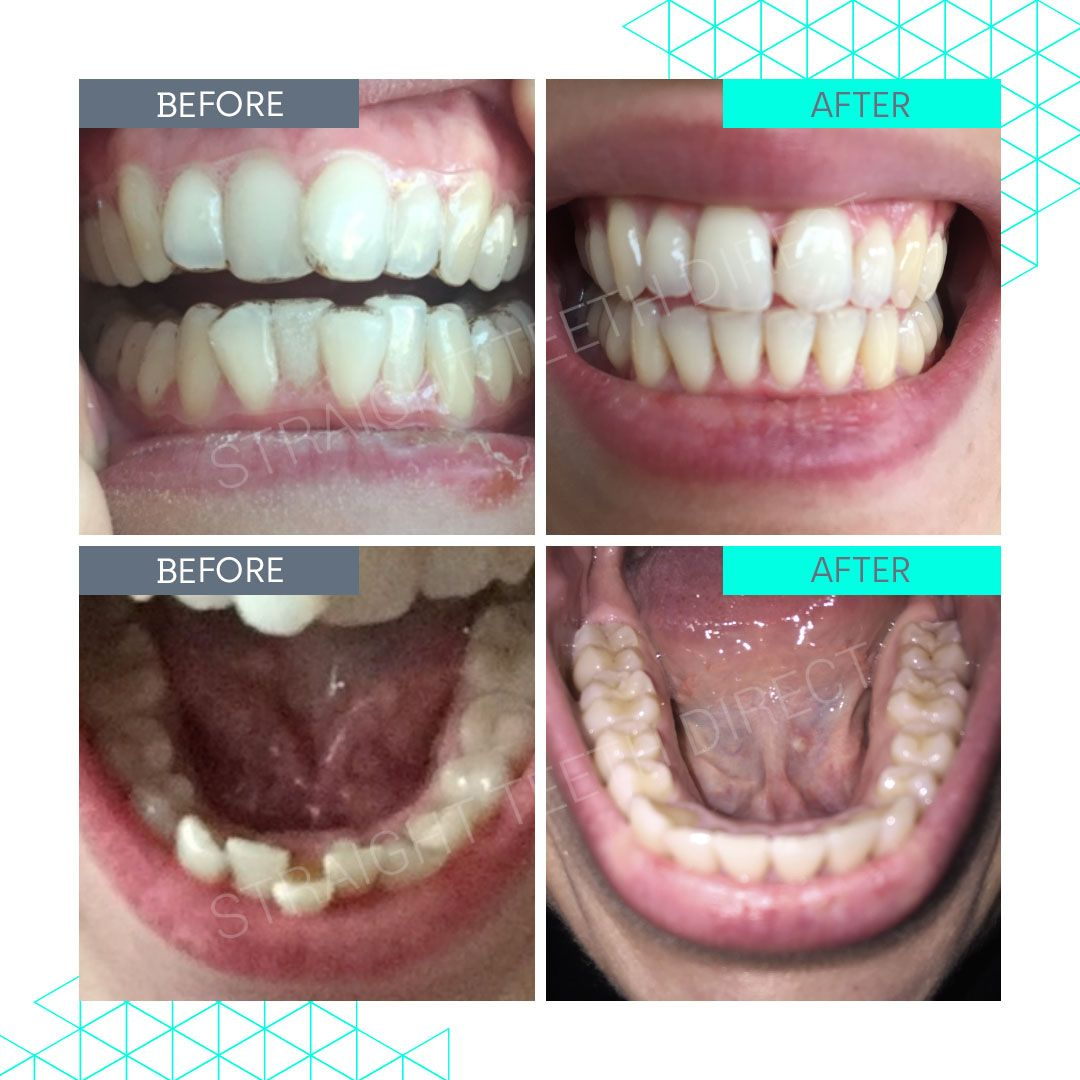 Straight Teeth Direct Review by Jazzmine