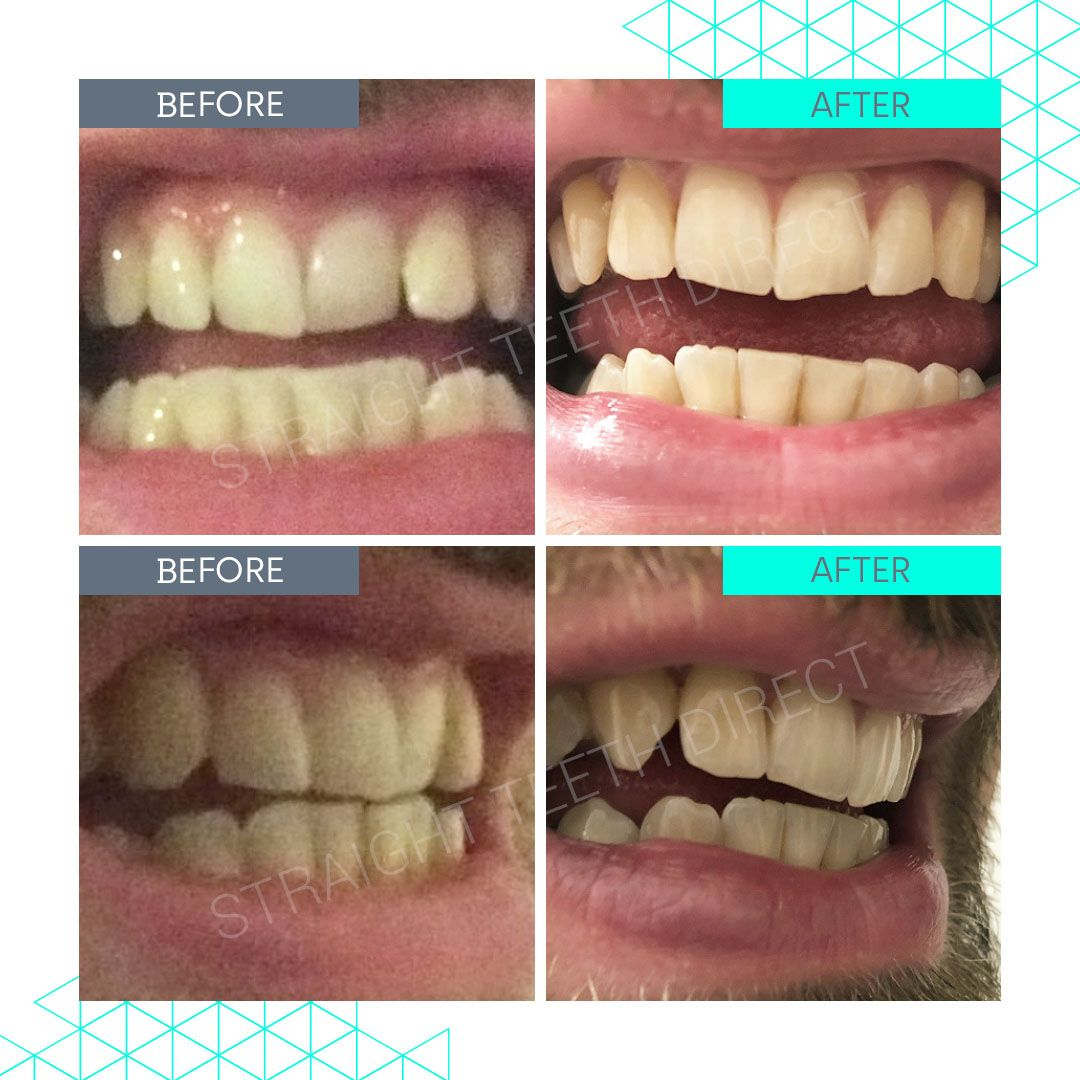 Straight Teeth Direct Review by John
