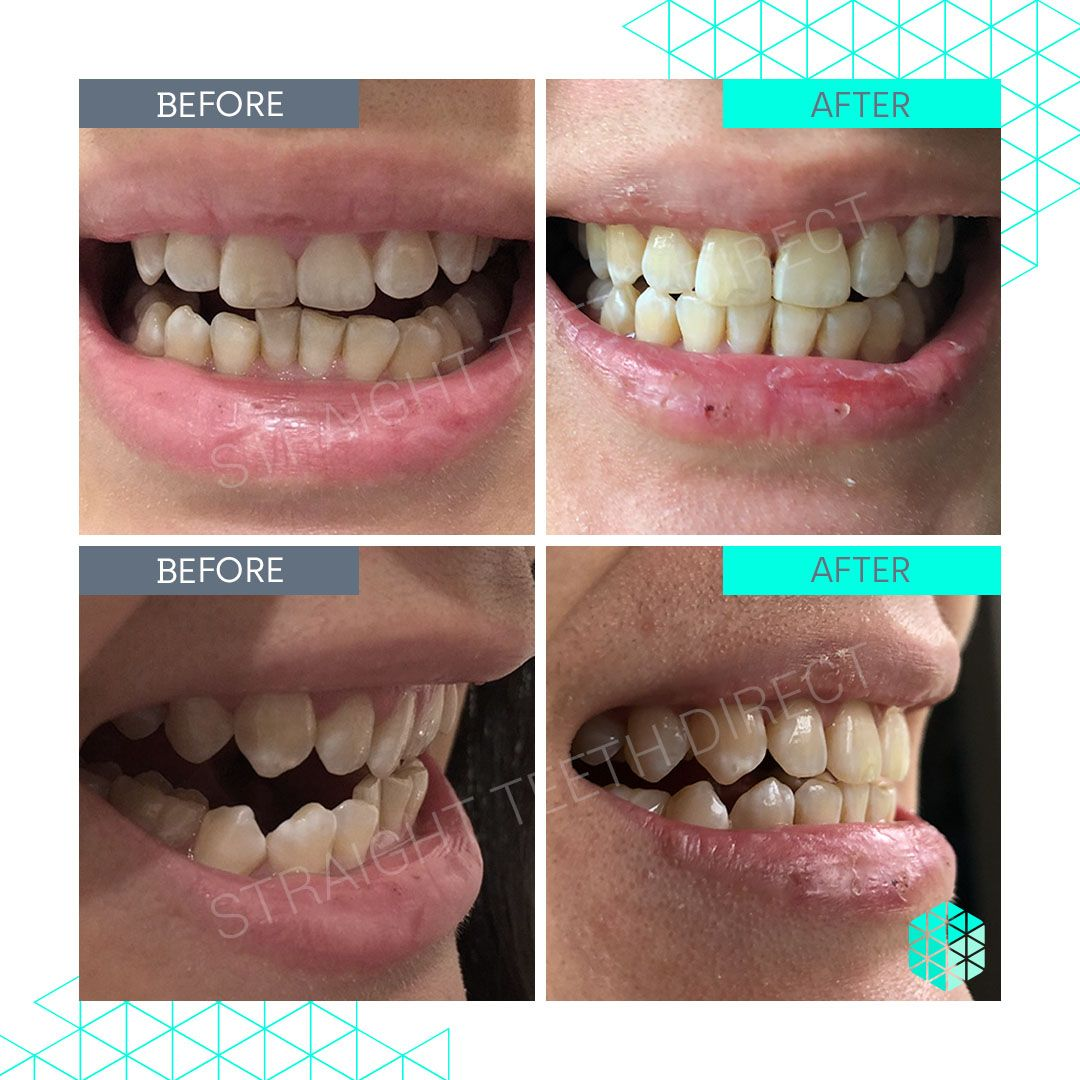 Straight Teeth Direct Review by Juli