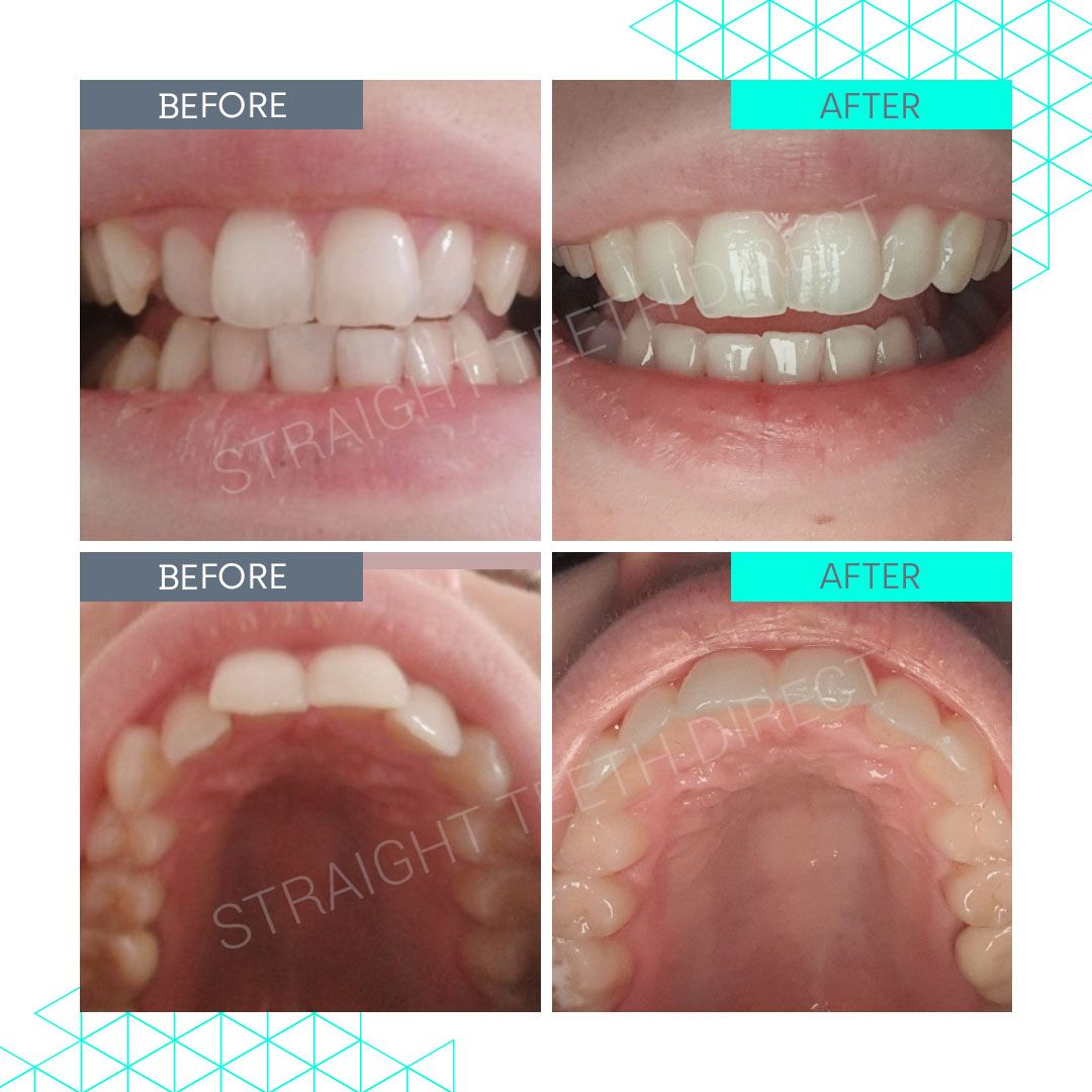 Straight Teeth Direct Review by Lauren