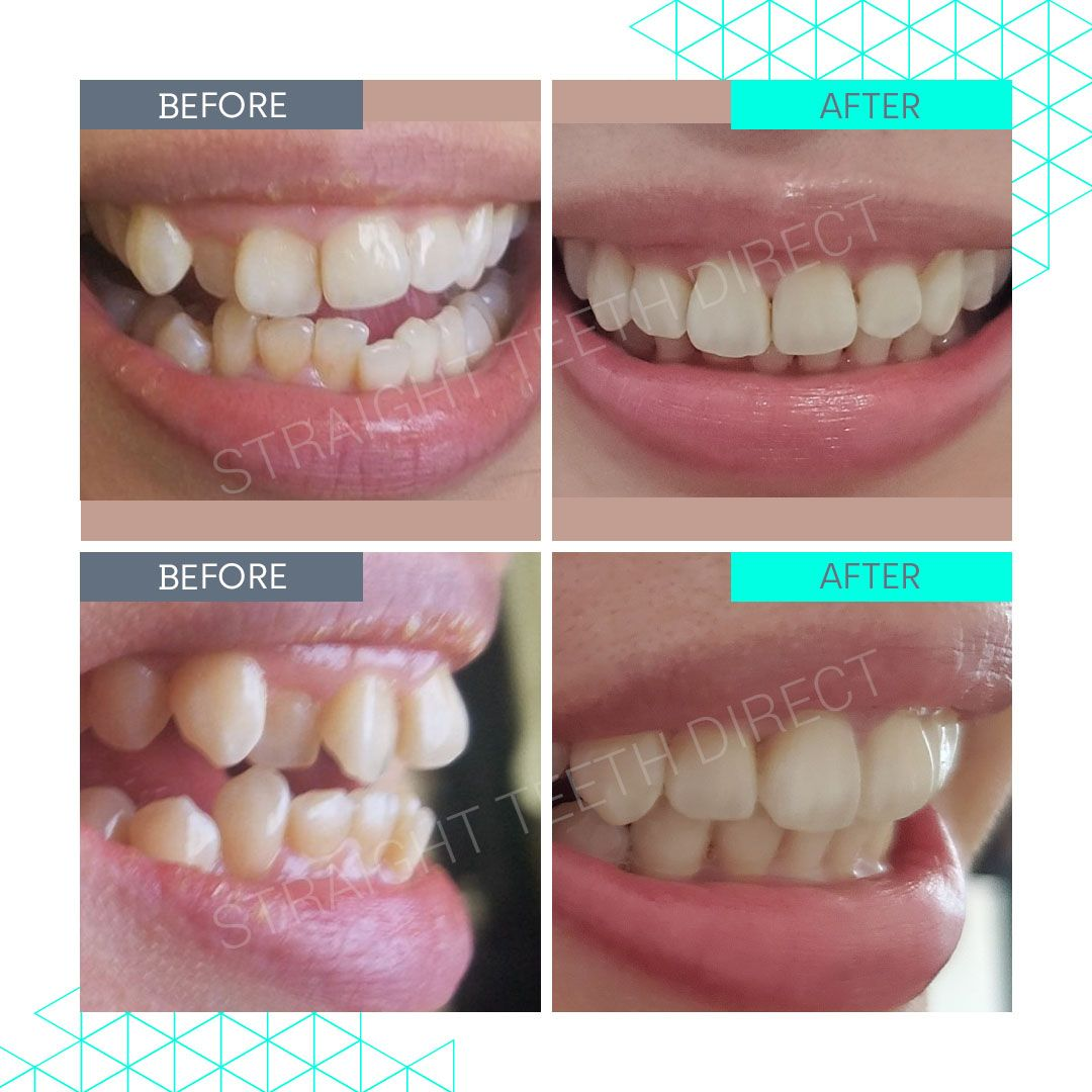 Straight Teeth Direct Review by Mai