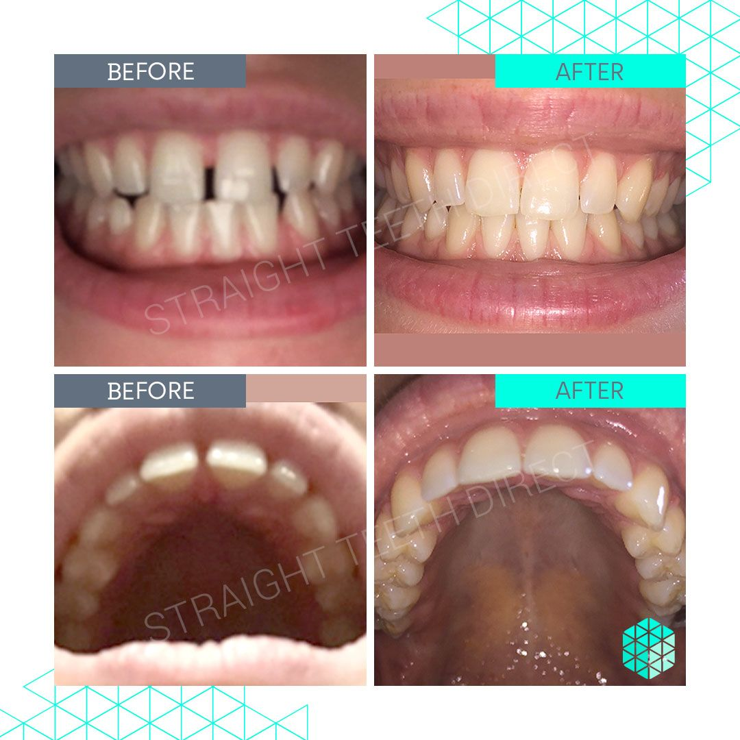 Straight Teeth Direct Review by Liv